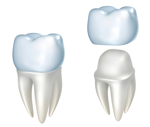 dental crown durban