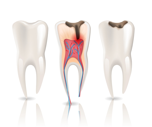 endodontics rootr canal durban