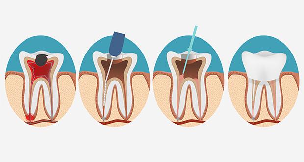 root canal repair durban