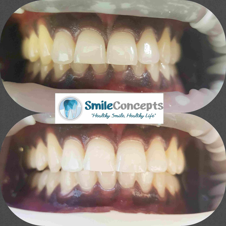 teeth whitening durban